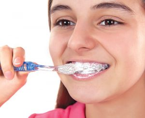 Cleaning Orthodontic Braces Lacey WA