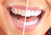 Whitening teeth Lacey WA