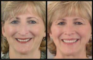 Reverse Aging Lacey WA